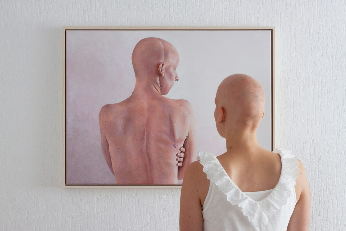 Alopecia - Embracing My Imperfections (2)