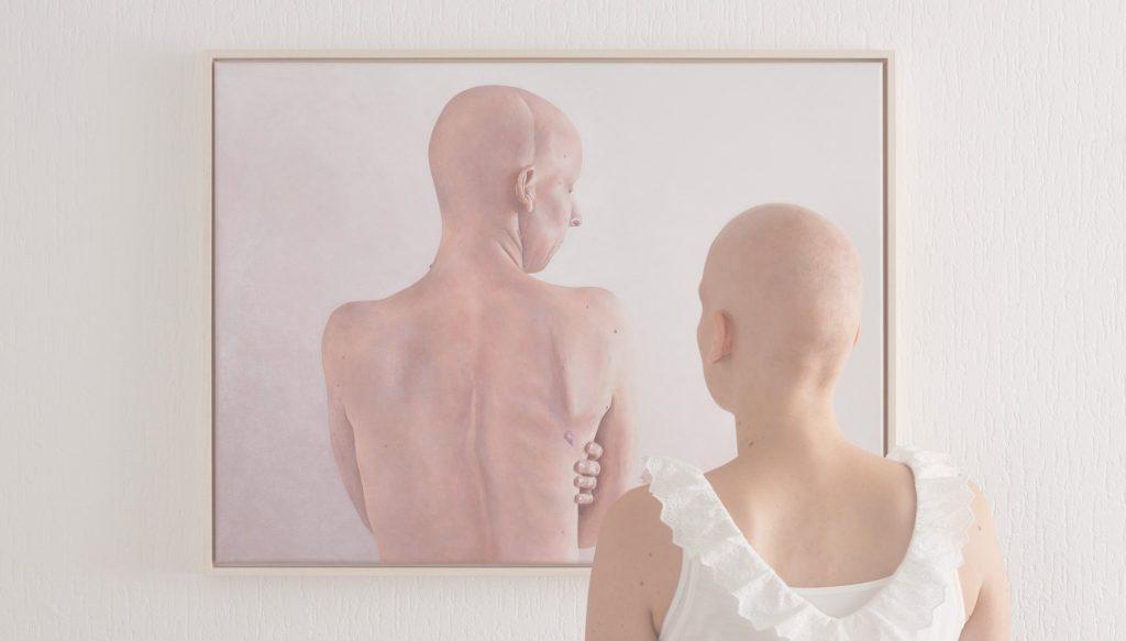 Home-Alopecia-Desktop