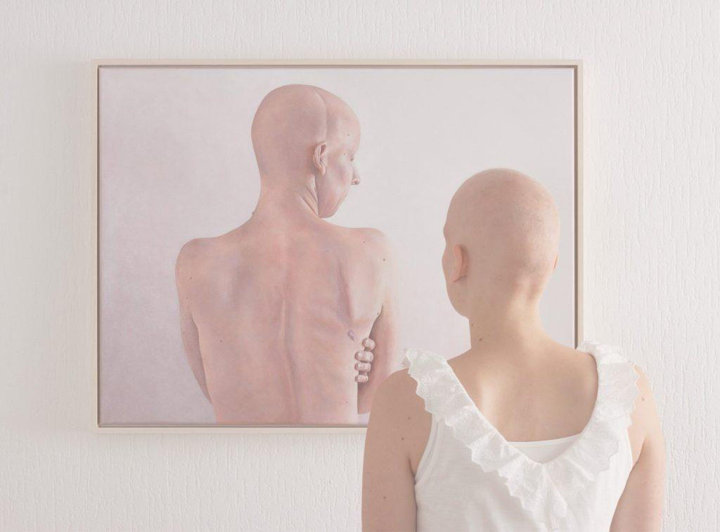 Home-Alopecia-Mobile